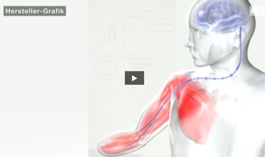 bionische prothesen hersteller